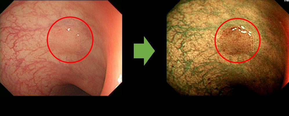 最高精度のNBI拡大内視鏡検査|さきたに内科・内視鏡クリニック