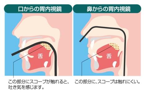 経口・経鼻内視鏡の断面図